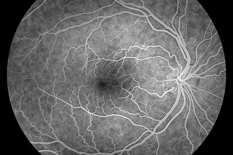 ФАГ Диагностика сосудов глаз