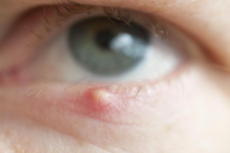 Лечение ячменя на глазу