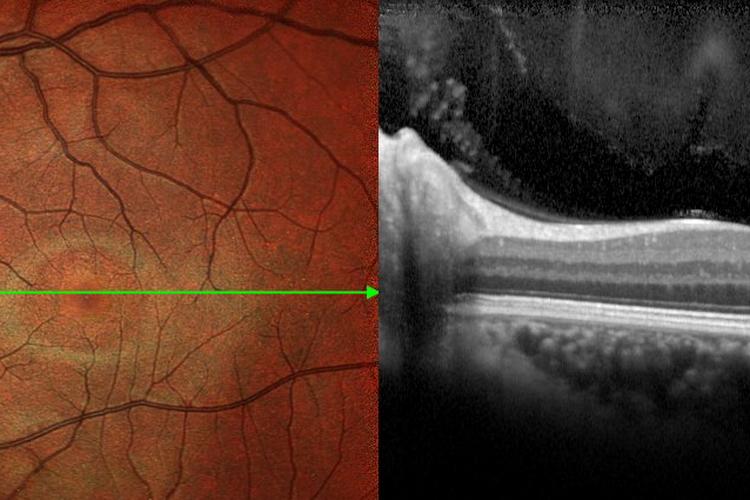 ОКТ Томография глаза
