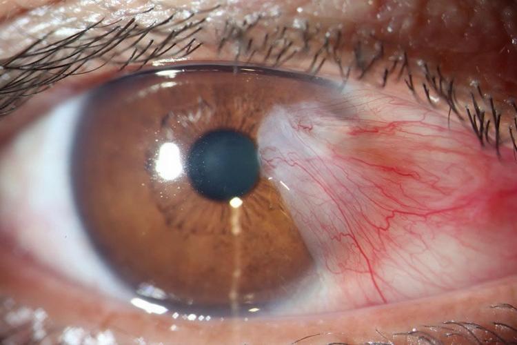 Удаление птеригиум глаза