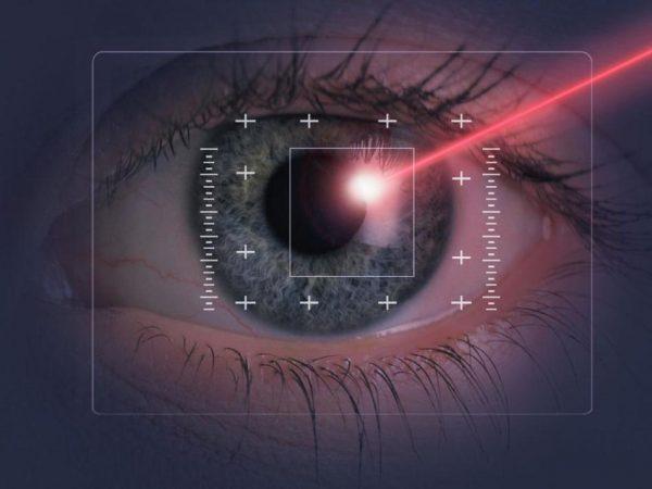 Возможности лазерной коррекции зрения