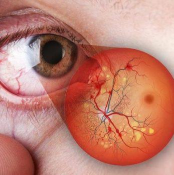 лечение центрального сезонного хориоретинита