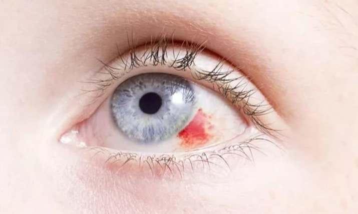 гемофтальм - кровоизлияние