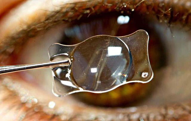 ограничения после замены хрусталика глаза