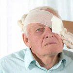 какие бывают осложнения после удаления катаракты