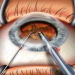 катаракта и глаукома - сочетанное лечение
