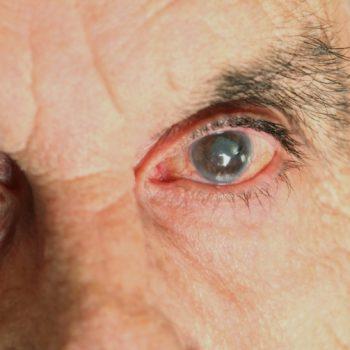 катаракта - как распознать и лечить