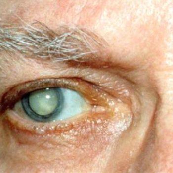 Твердая катаракта