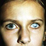 катаракта белая