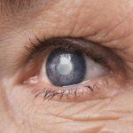 опасность катаракты