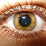 сухая катаракта