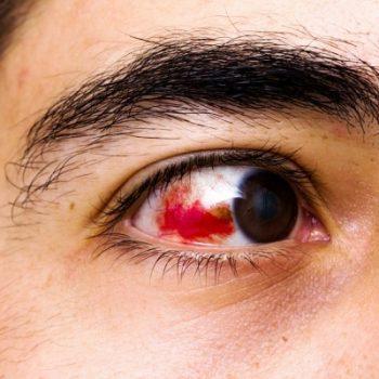 глаз при гемофтальме