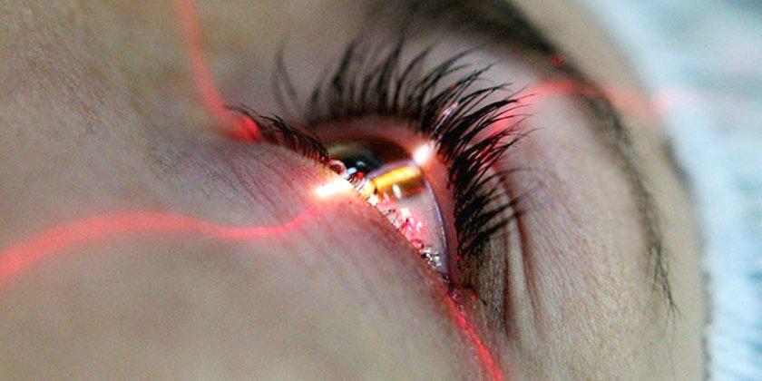 lasik - коррекция зрения лазером