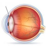 схема - катаракта