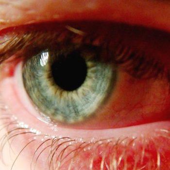 воспаленный глаз - острый хориоретинит