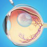 отслоение сетчатки, оперативное лечение