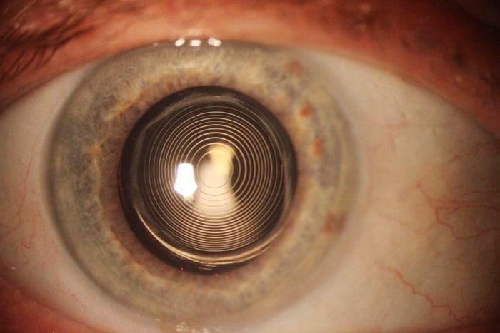 Реабилитация после операции при катаракте глаза: поведение в послеоперационный период, рекомендации