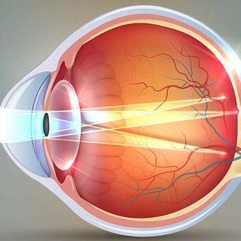 нарушения рефракции глаза