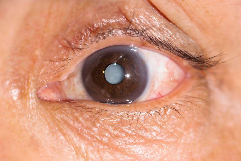 катаракта сенильная