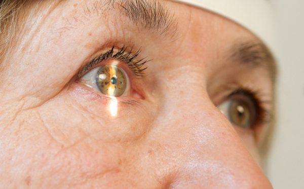 как проявляется катаракта
