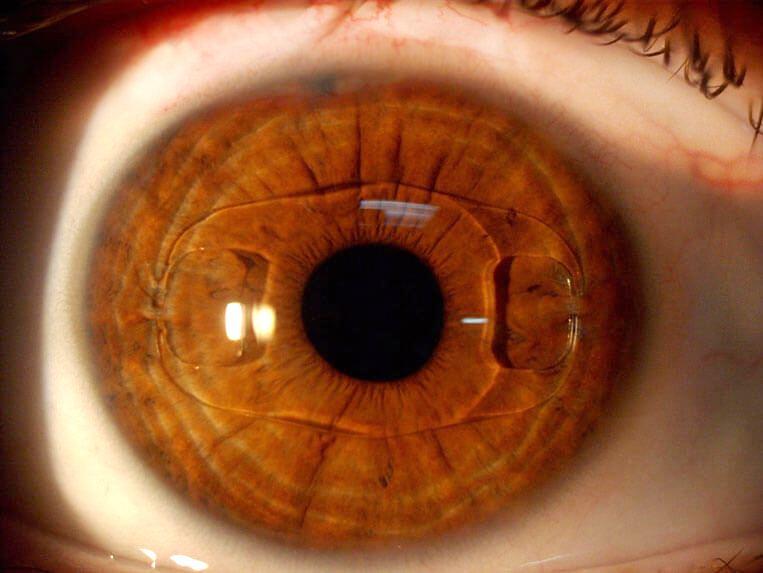 Сколько стоит поменять хрусталик глаза цена