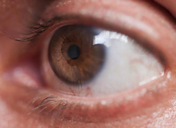 Диагноз открытоугольная глаукома