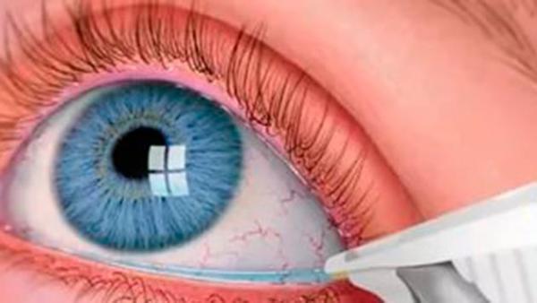 Закрытоугольная глаукома: симптомы и лечение