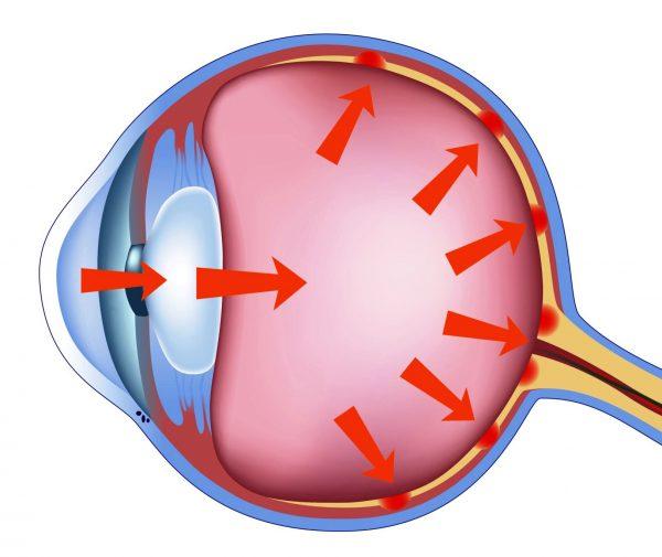 Открытоугольная глаукома - причины и симптомы