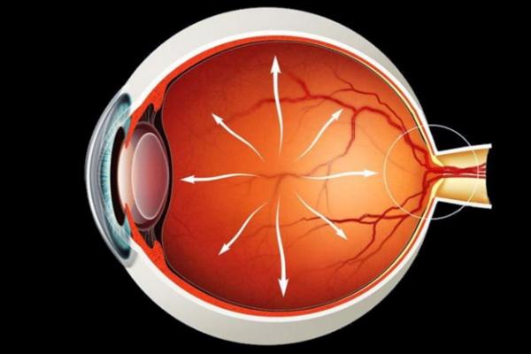 Стадии открытоугольной глаукомы