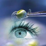 Стандарты помощи при помутнении хрусталика глаза