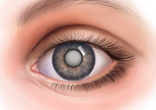 мягкая катаракта - операция по удалению