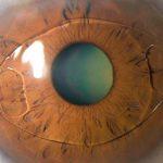 глаз с иол